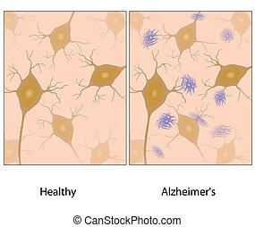 alzheimer's, hjärna, vävnad, amyloid, w