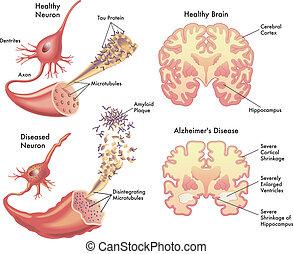 alzheimer's sjukdom
