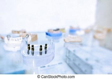 dental, tandläkare, implantat