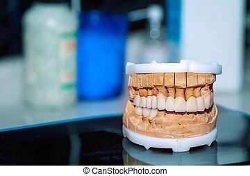 dental, tandläkare, tand