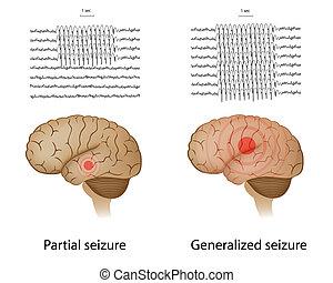 epilepsi, delvis, generalized