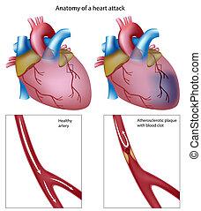 hjärta, eps8, angrepp