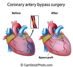 hjärta operation, förbifartsled, eps8