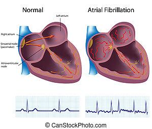 hjärtflimmer, atrial, eps8