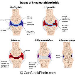 ledinflammation, stegen, reumatoid