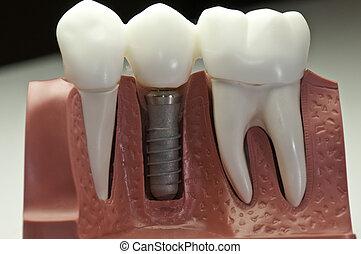 modell, dental, implantat, capped