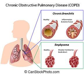sjukdom, lunga, eps8