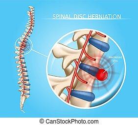skiva, medicinsk, herniation, ryggrads, vektor, intrig