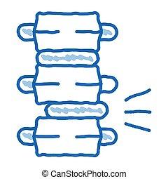 skiva, smärta, kolonn, ryggrads problem, vektor, cirkulär