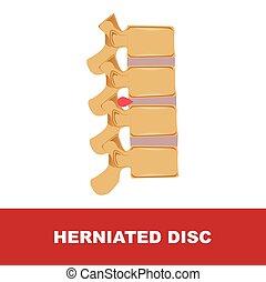 skiva, vektor, illustration, herniated