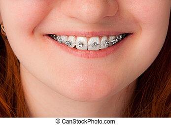 tand varsamhet, concept., hängslen, tänder